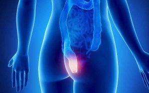 Terapêuticas eficazes na doença Hemorroidária