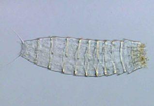 Echinoderes lusitanicus . Este espécime é um macho desta que foi a primeira espécie nova descrita para Portugal.